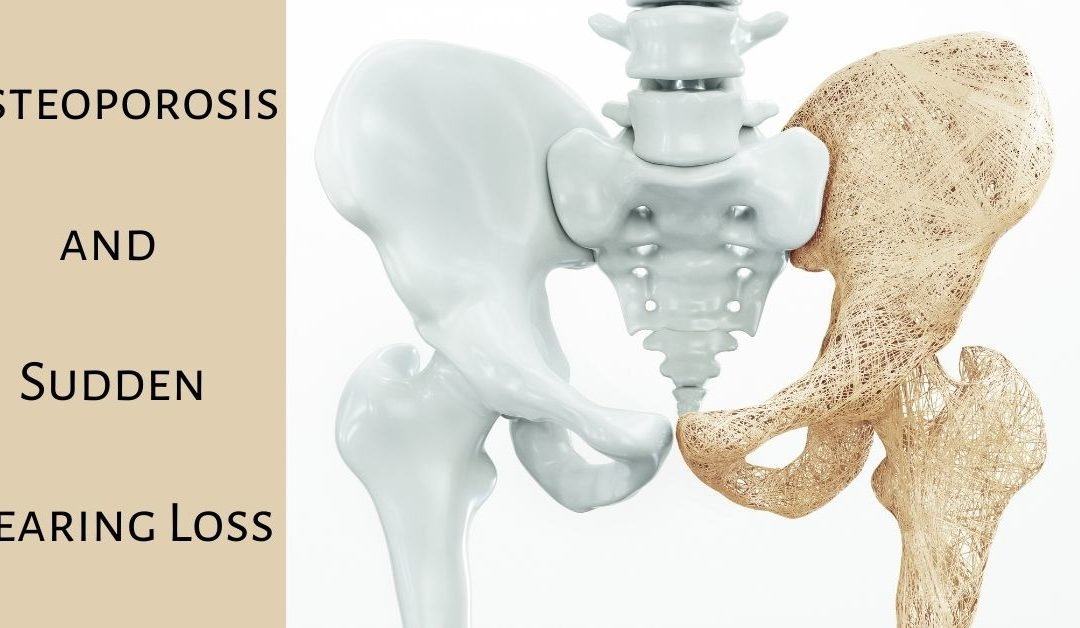 Osteoporosis and Sudden Hearing Loss